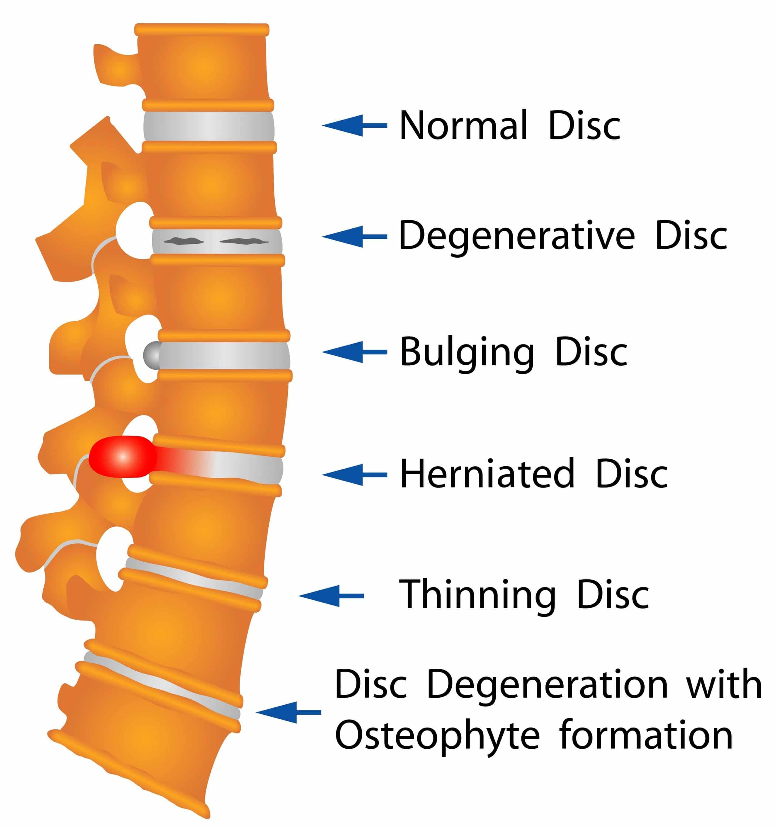 Chiropractor in Burbank Dr. Shahen shows a diagram of disc disorders