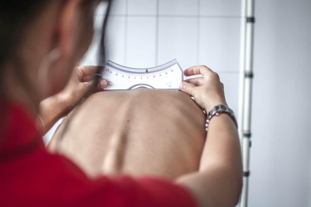 chiropractor examine patients scoliosis