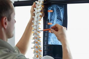 The Symptoms of Degenerative Disc Disease